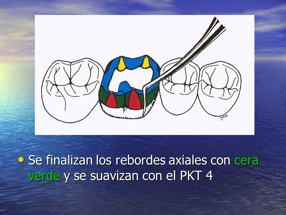 Se finalizan los rebordes axiales con cera verde y se suavizan con el PKT 4 Se finalizan los rebordes axiales con cera verde y se suavizan con el PKT