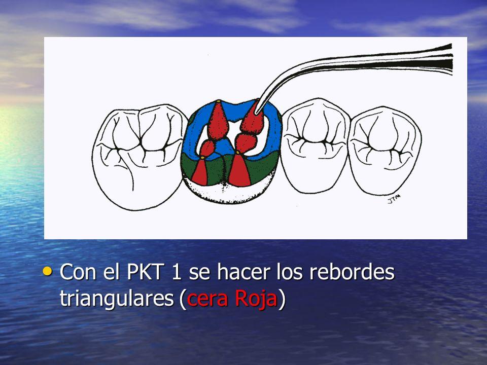 Con el PKT 1 se hacer los rebordes triangulares (cera Roja) Con el PKT 1 se hacer los rebordes triangulares (cera Roja)