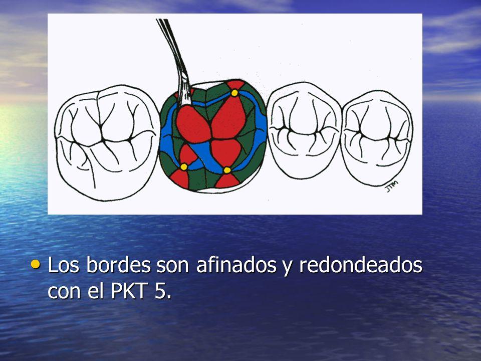 Los bordes son afinados y redondeados con el PKT 5. Los bordes son afinados y redondeados con el PKT 5.