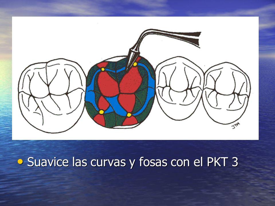 Suavice las curvas y fosas con el PKT 3 Suavice las curvas y fosas con el PKT 3