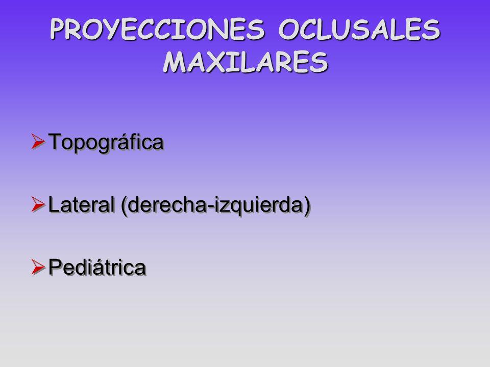 PROYECCIONES OCLUSALES MAXILARES Topográfica Lateral (derecha-izquierda) Pediátrica Topográfica Lateral (derecha-izquierda) Pediátrica