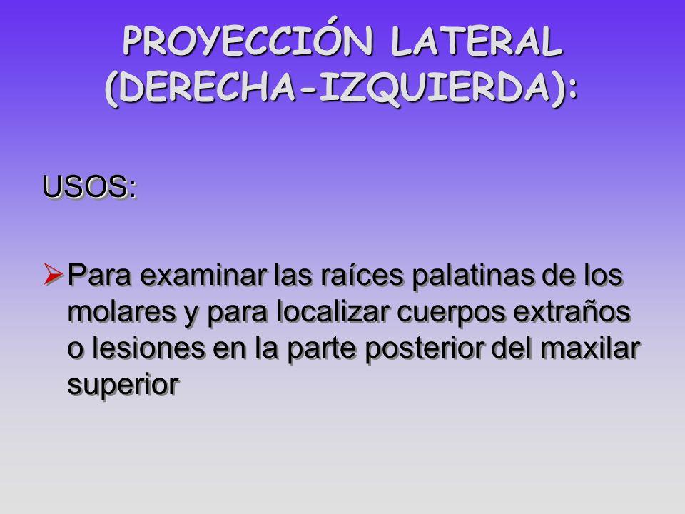 PROYECCIÓN LATERAL (DERECHA-IZQUIERDA): USOS: Para examinar las raíces palatinas de los molares y para localizar cuerpos extraños o lesiones en la par