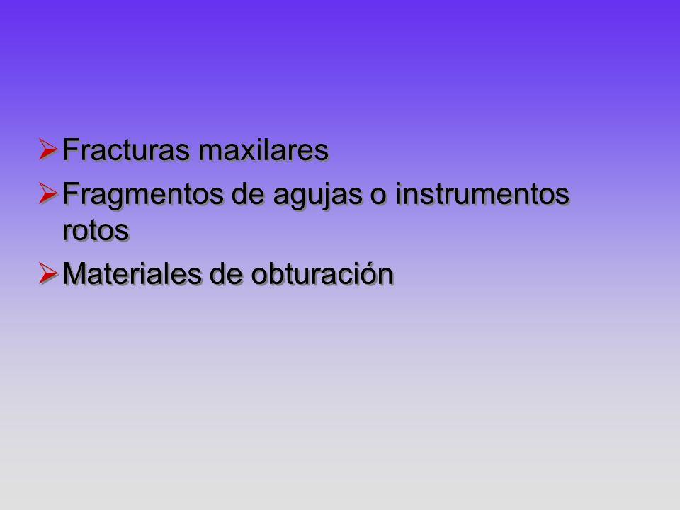 Fracturas maxilares Fragmentos de agujas o instrumentos rotos Materiales de obturación Fracturas maxilares Fragmentos de agujas o instrumentos rotos M
