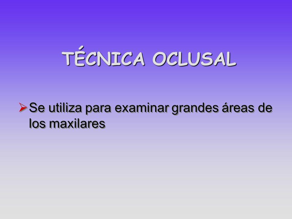 TÉCNICA OCLUSAL Se utiliza para examinar grandes áreas de los maxilares