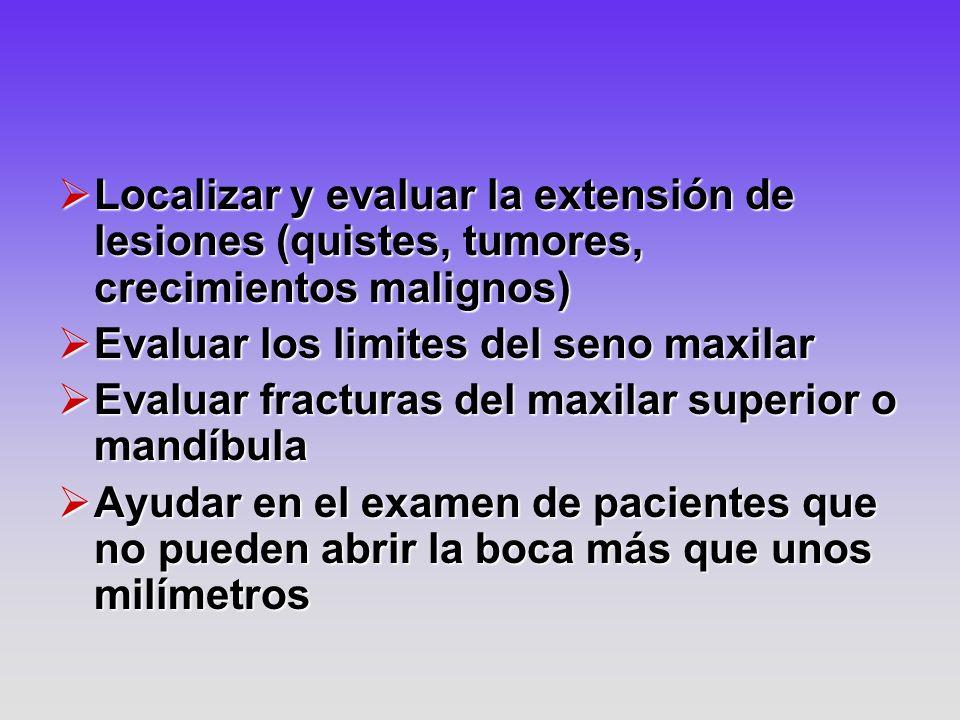 Localizar y evaluar la extensión de lesiones (quistes, tumores, crecimientos malignos) Localizar y evaluar la extensión de lesiones (quistes, tumores,
