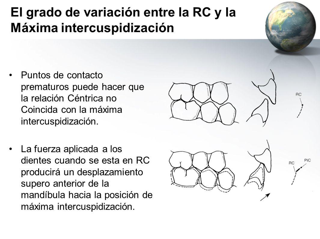 El grado de variación entre la RC y la Máxima intercuspidización Puntos de contacto prematuros puede hacer que la relación Céntrica no Coincida con la
