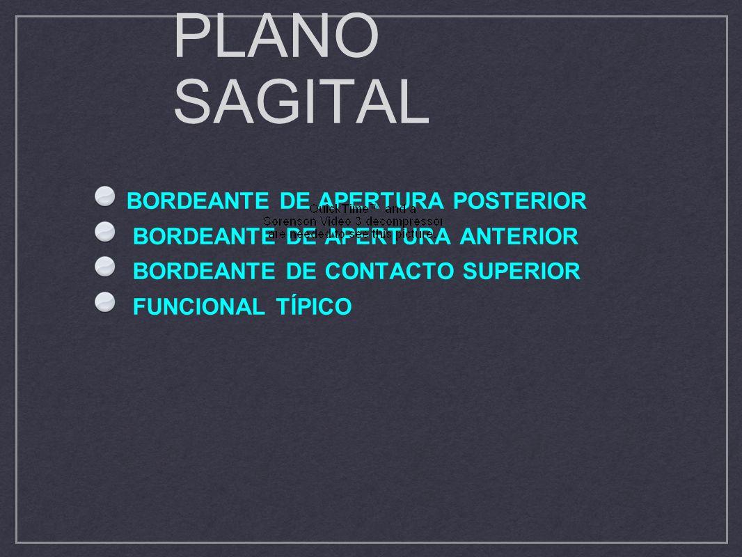 PLANO SAGITAL BORDEANTE DE APERTURA POSTERIOR BORDEANTE DE APERTURA ANTERIOR BORDEANTE DE CONTACTO SUPERIOR FUNCIONAL TÍPICO