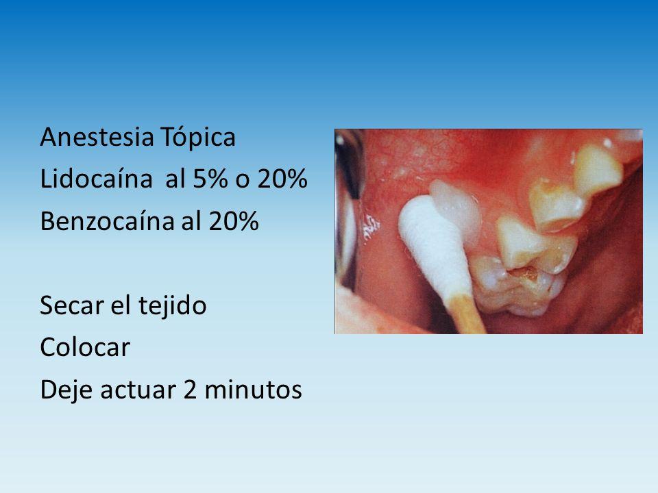 Anestesia Tópica Lidocaína al 5% o 20% Benzocaína al 20% Secar el tejido Colocar Deje actuar 2 minutos