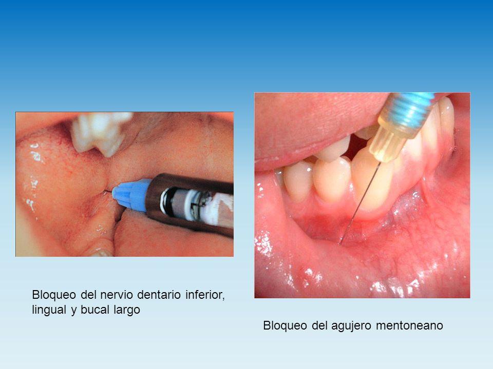 Bloqueo del nervio dentario inferior, lingual y bucal largo Bloqueo del agujero mentoneano