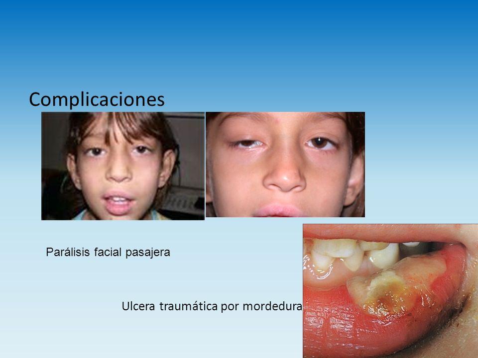 Complicaciones Ulcera traumática por mordedura Parálisis facial pasajera