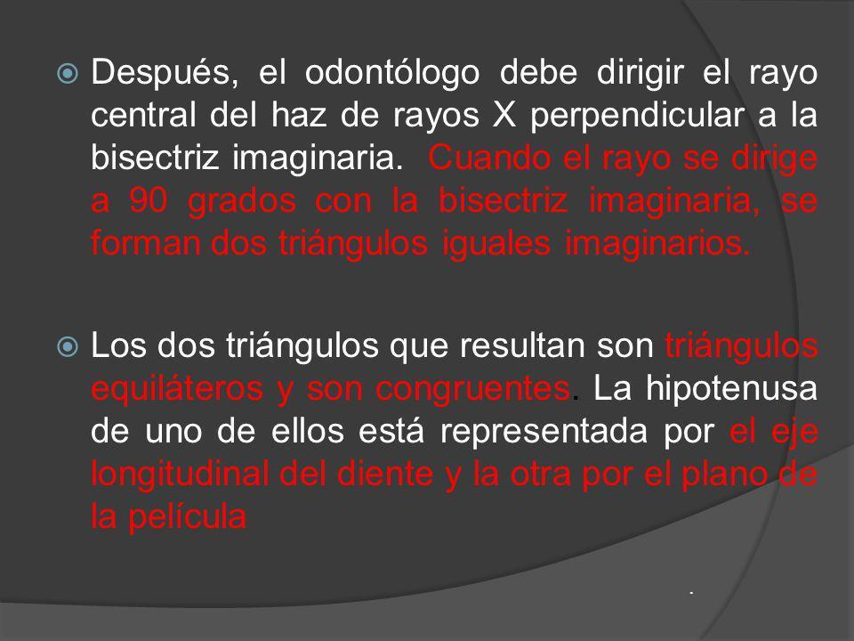 Después, el odontólogo debe dirigir el rayo central del haz de rayos X perpendicular a la bisectriz imaginaria. Cuando el rayo se dirige a 90 grados c