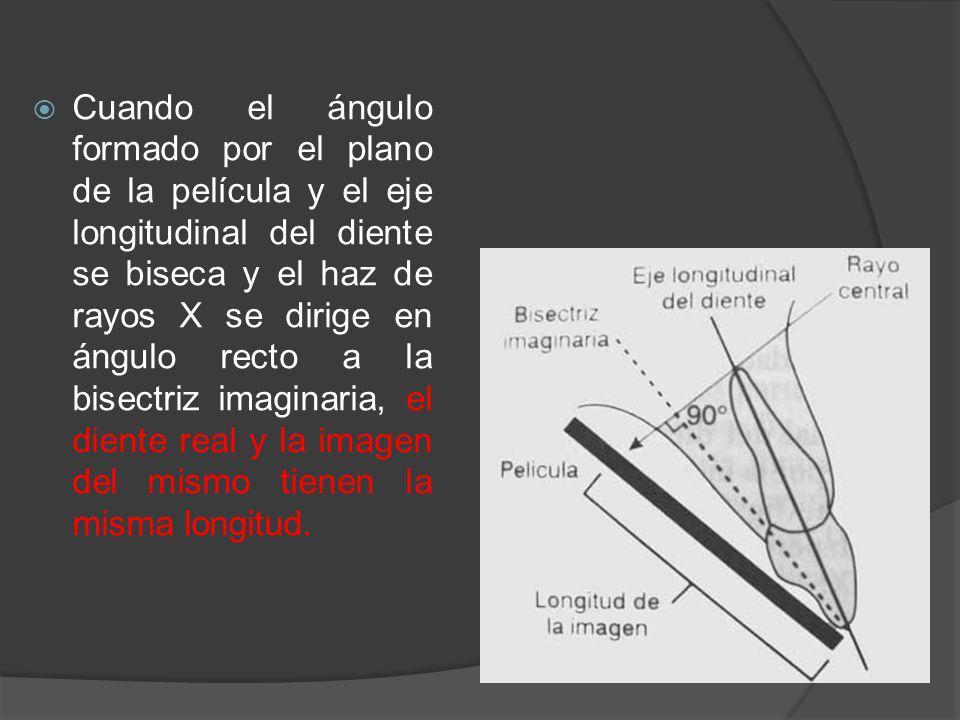 Cuando el ángulo formado por el plano de la película y el eje longitudinal del diente se biseca y el haz de rayos X se dirige en ángulo recto a la bis