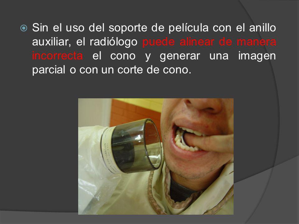 Sin el uso del soporte de película con el anillo auxiliar, el radiólogo puede alinear de manera incorrecta el cono y generar una imagen parcial o con