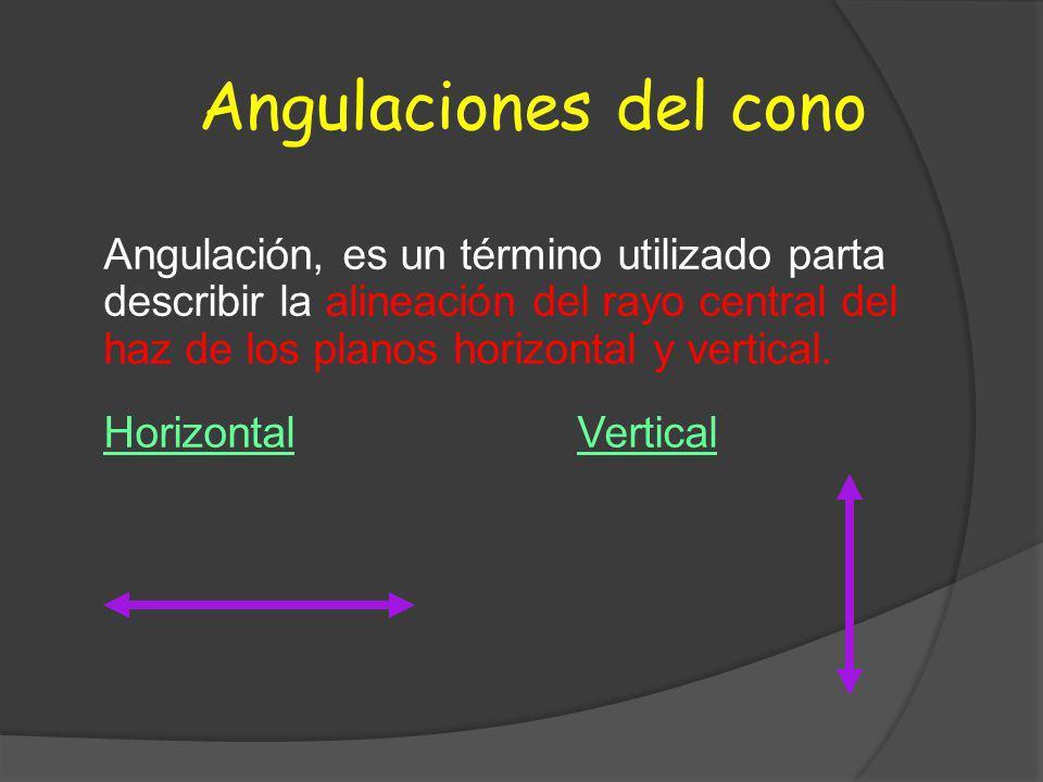 Angulaciones del cono Angulación, es un término utilizado parta describir la alineación del rayo central del haz de los planos horizontal y vertical.