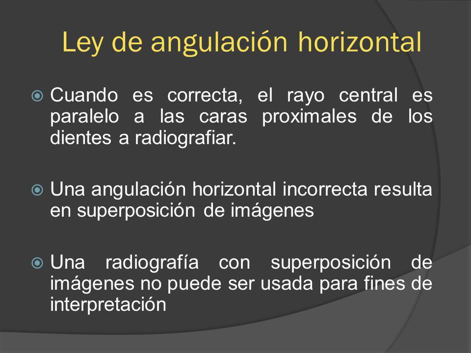 Ley de angulación horizontal Cuando es correcta, el rayo central es paralelo a las caras proximales de los dientes a radiografiar. Una angulación hori