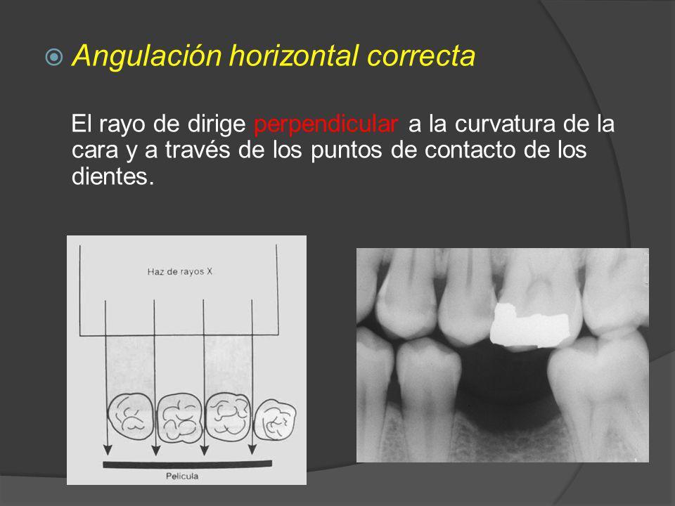Angulación horizontal correcta El rayo de dirige perpendicular a la curvatura de la cara y a través de los puntos de contacto de los dientes.
