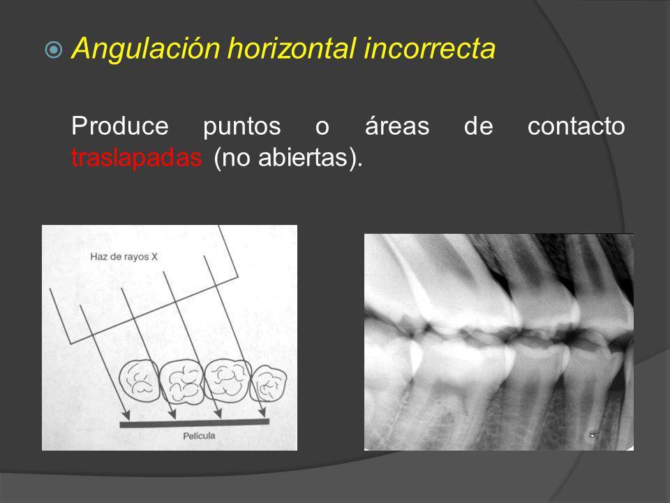 Angulación horizontal incorrecta Produce puntos o áreas de contacto traslapadas (no abiertas).
