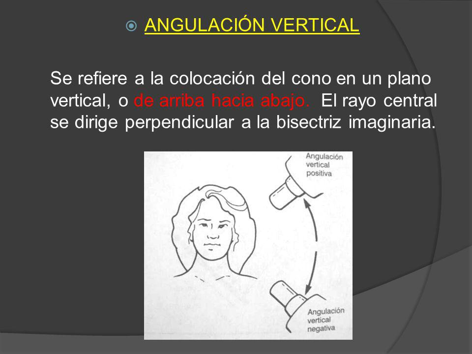 ANGULACIÓN VERTICAL Se refiere a la colocación del cono en un plano vertical, o de arriba hacia abajo. El rayo central se dirige perpendicular a la bi