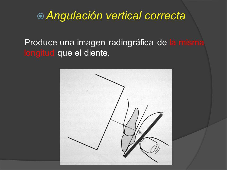 Angulación vertical correcta Produce una imagen radiográfica de la misma longitud que el diente.