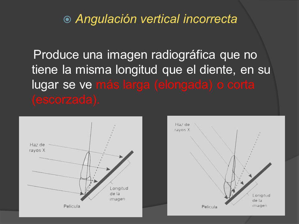 Angulación vertical incorrecta Produce una imagen radiográfica que no tiene la misma longitud que el diente, en su lugar se ve más larga (elongada) o
