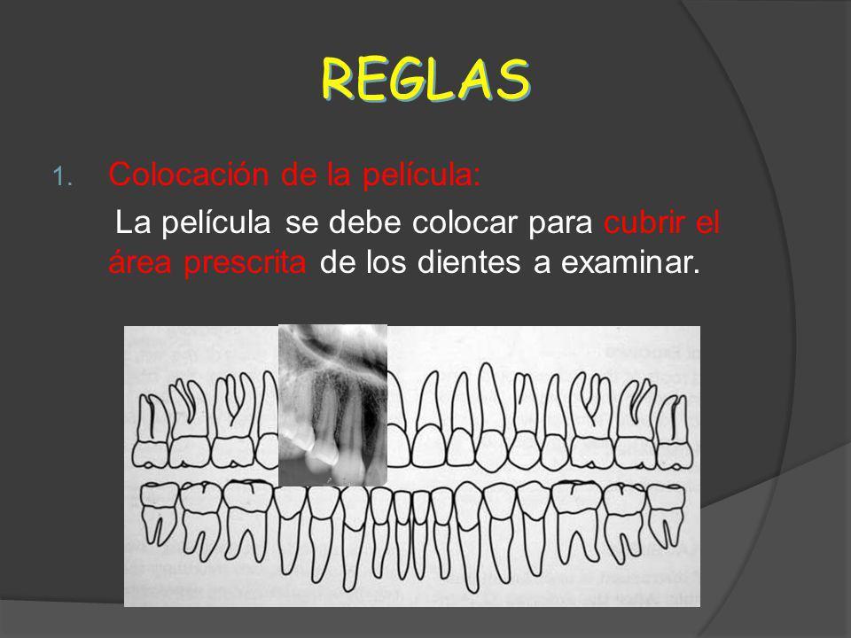 REGLAS 1. Colocación de la película: La película se debe colocar para cubrir el área prescrita de los dientes a examinar.