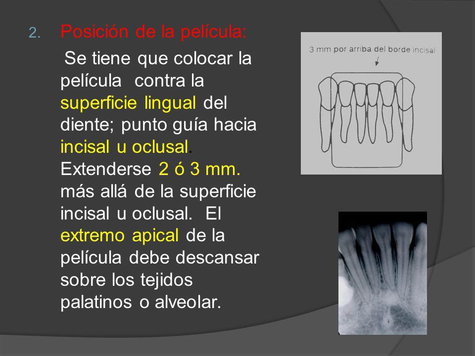 2. Posición de la película: Se tiene que colocar la película contra la superficie lingual del diente; punto guía hacia incisal u oclusal. Extenderse 2