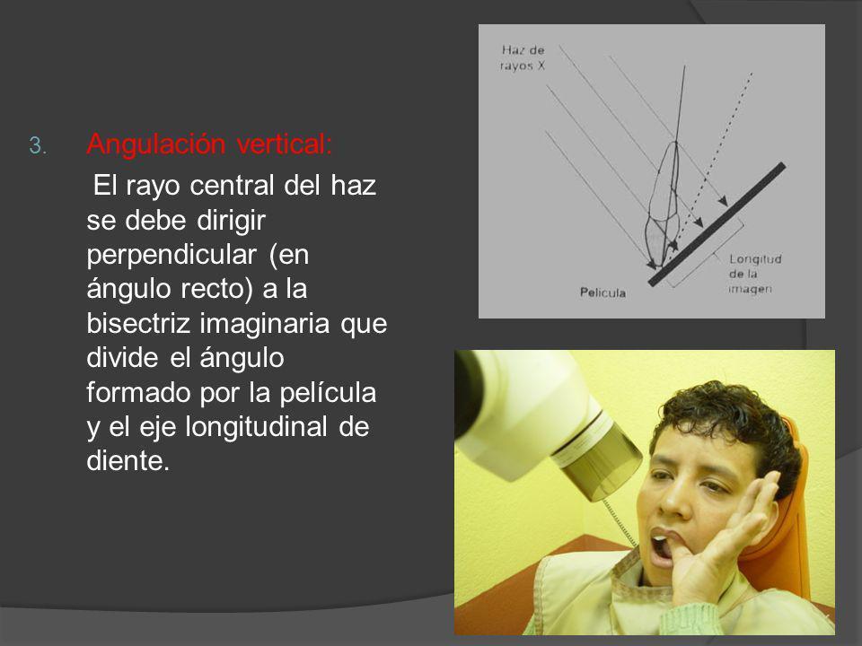 3. Angulación vertical: El rayo central del haz se debe dirigir perpendicular (en ángulo recto) a la bisectriz imaginaria que divide el ángulo formado