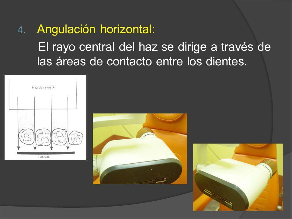 4. Angulación horizontal: El rayo central del haz se dirige a través de las áreas de contacto entre los dientes.