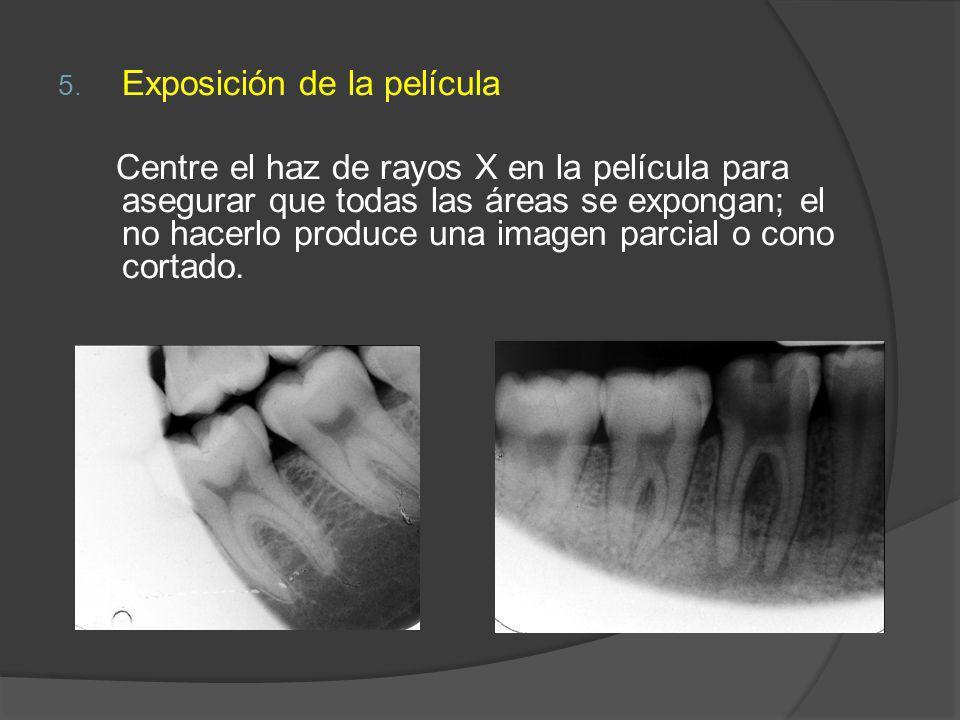 5. Exposición de la película Centre el haz de rayos X en la película para asegurar que todas las áreas se expongan; el no hacerlo produce una imagen p