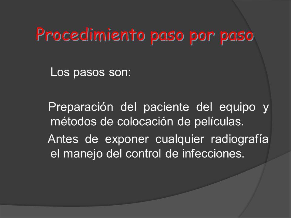 Procedimiento paso por paso Los pasos son: Preparación del paciente del equipo y métodos de colocación de películas. Antes de exponer cualquier radiog
