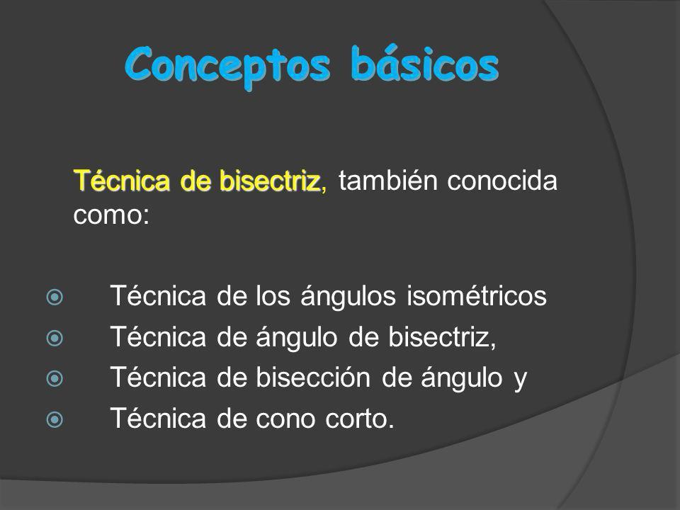 Conceptos básicos Técnica de bisectriz Técnica de bisectriz, también conocida como: Técnica de los ángulos isométricos Técnica de ángulo de bisectriz,