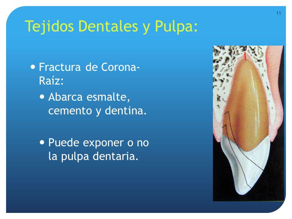 Tejidos Dentales y Pulpa: Fractura de Corona- Raíz: Abarca esmalte, cemento y dentina. Puede exponer o no la pulpa dentaria. 11
