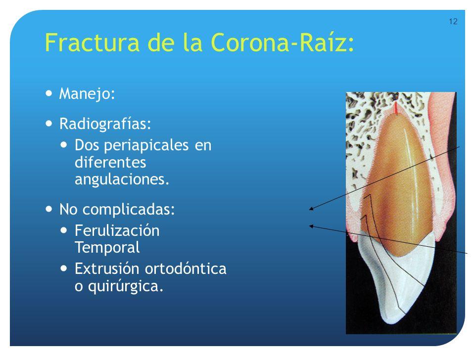 Fractura de la Corona-Raíz: Manejo: Radiografías: Dos periapicales en diferentes angulaciones. No complicadas: Ferulización Temporal Extrusión ortodón