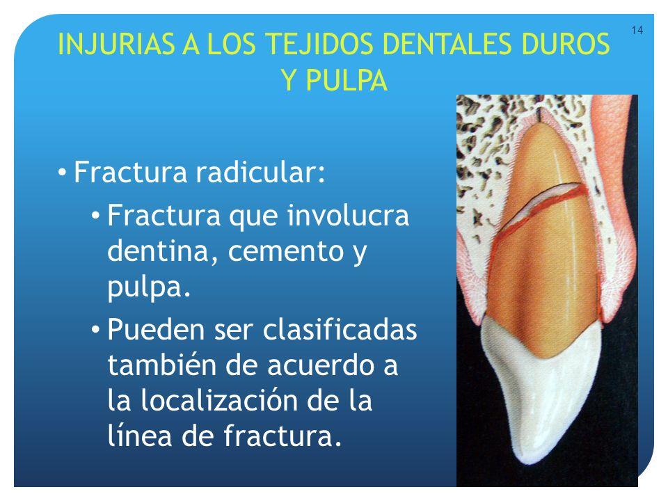 INJURIAS A LOS TEJIDOS DENTALES DUROS Y PULPA Fractura radicular: Fractura que involucra dentina, cemento y pulpa. Pueden ser clasificadas también de