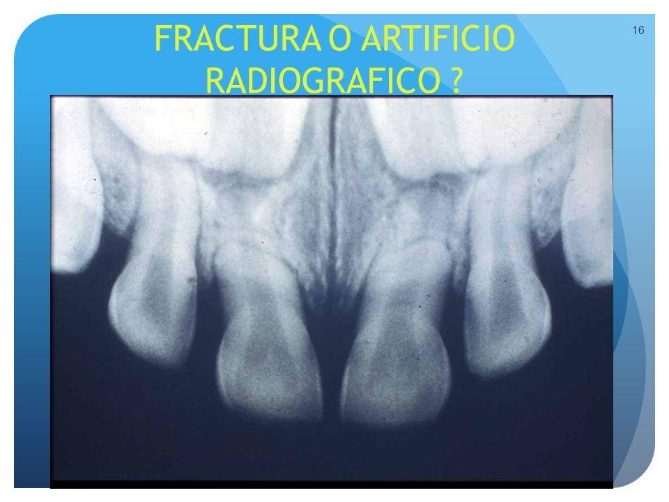 FRACTURA O ARTIFICIO RADIOGRAFICO ? 16