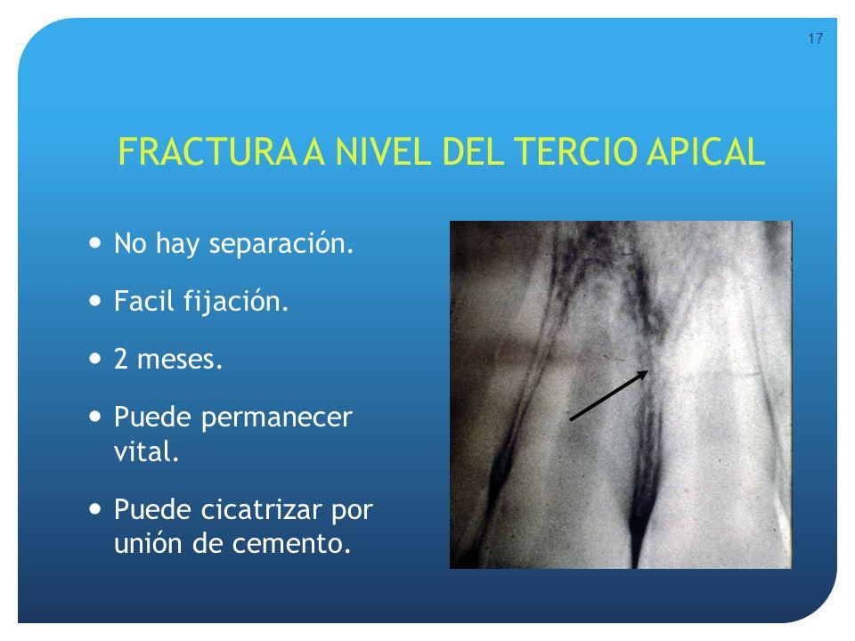 FRACTURA A NIVEL DEL TERCIO APICAL No hay separación. Facil fijación. 2 meses. Puede permanecer vital. Puede cicatrizar por unión de cemento. 17