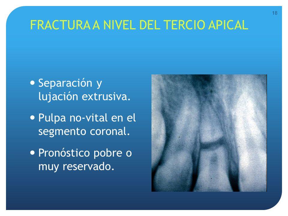 FRACTURA A NIVEL DEL TERCIO APICAL Separación y lujación extrusiva. Pulpa no-vital en el segmento coronal. Pronóstico pobre o muy reservado. 18