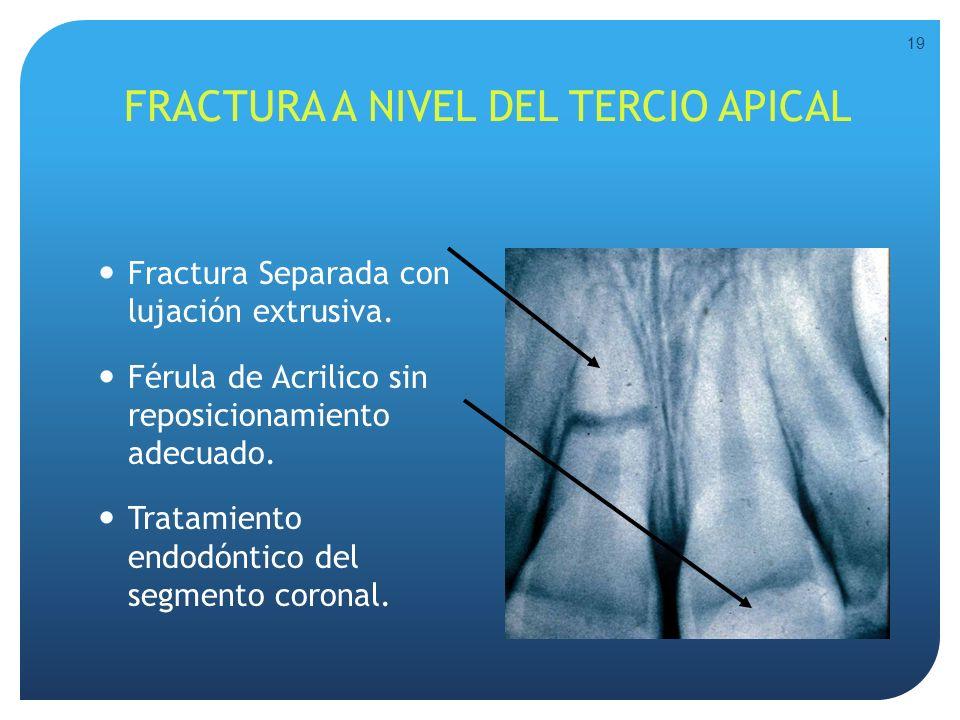 FRACTURA A NIVEL DEL TERCIO APICAL Fractura Separada con lujación extrusiva. Férula de Acrilico sin reposicionamiento adecuado. Tratamiento endodóntic