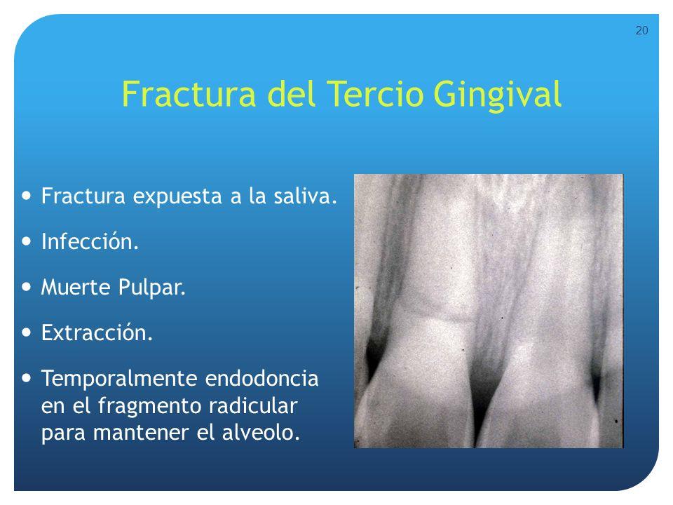 Fractura del Tercio Gingival Fractura expuesta a la saliva. Infección. Muerte Pulpar. Extracción. Temporalmente endodoncia en el fragmento radicular p