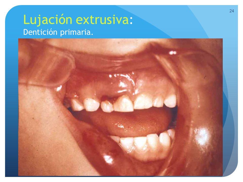 Lujación extrusiva: Dentición primaria. 24