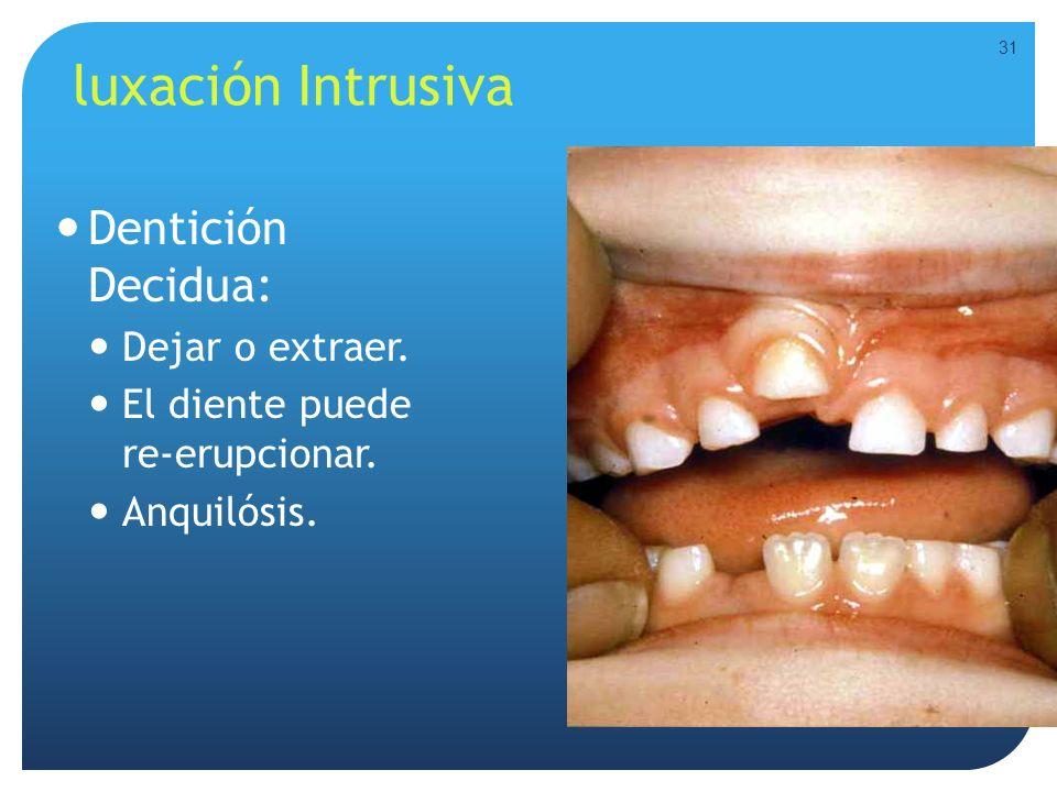 luxación Intrusiva Dentición Decidua: Dejar o extraer. El diente puede re-erupcionar. Anquilósis. 31