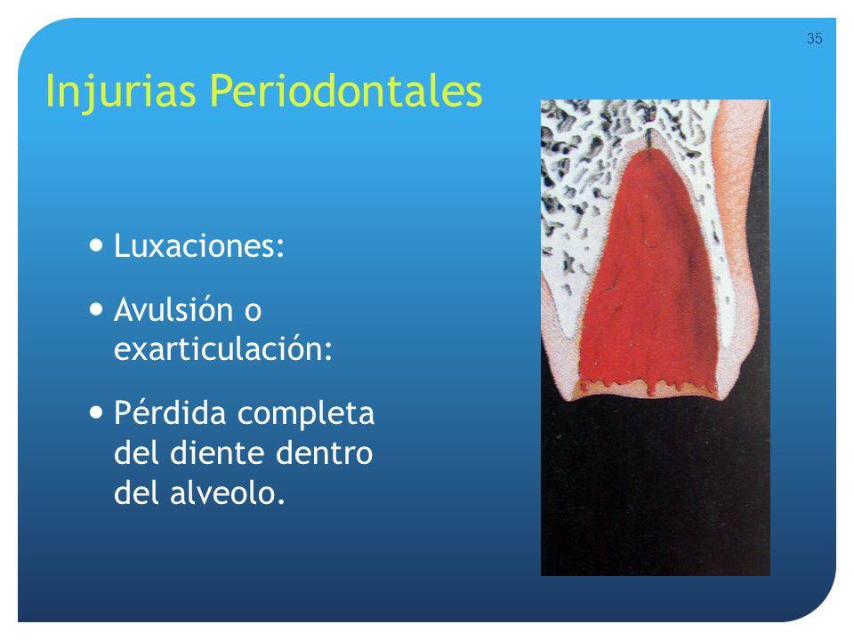 Injurias Periodontales Luxaciones: Avulsión o exarticulación: Pérdida completa del diente dentro del alveolo. 35