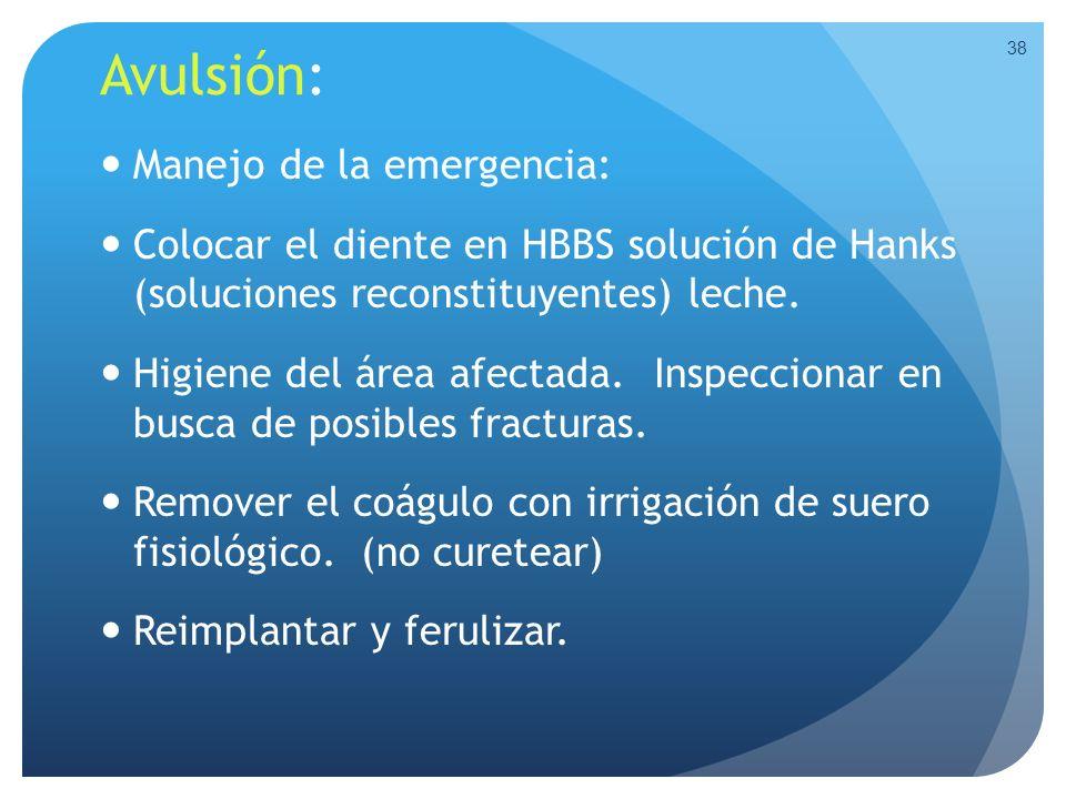 Avulsión: Manejo de la emergencia: Colocar el diente en HBBS solución de Hanks (soluciones reconstituyentes) leche. Higiene del área afectada. Inspecc