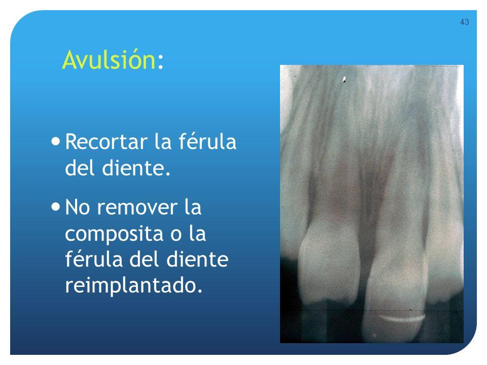 Avulsión: Recortar la férula del diente. No remover la composita o la férula del diente reimplantado. 43