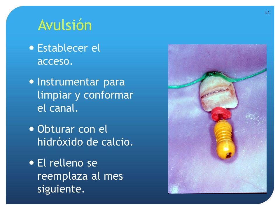 Avulsión Establecer el acceso. Instrumentar para limpiar y conformar el canal. Obturar con el hidróxido de calcio. El relleno se reemplaza al mes sigu