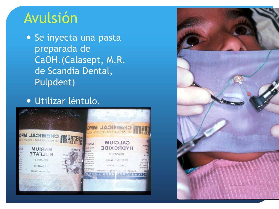Avulsión Se inyecta una pasta preparada de CaOH.(Calasept, M.R. de Scandia Dental, Pulpdent) Utilizar léntulo. 45