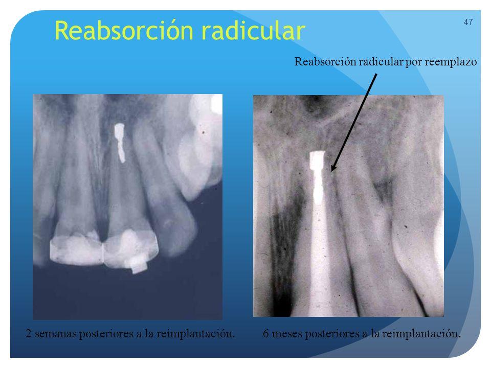 Reabsorción radicular 47 2 semanas posteriores a la reimplantación. 6 meses posteriores a la reimplantación. Reabsorción radicular por reemplazo