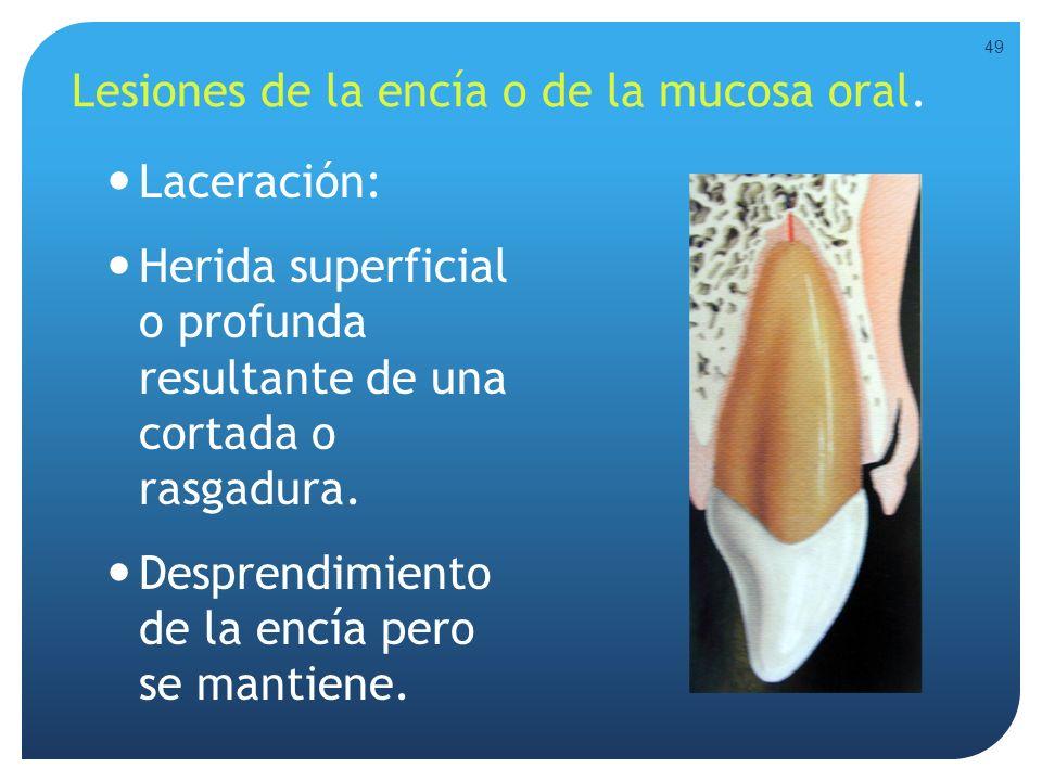 Lesiones de la encía o de la mucosa oral. Laceración: Herida superficial o profunda resultante de una cortada o rasgadura. Desprendimiento de la encía