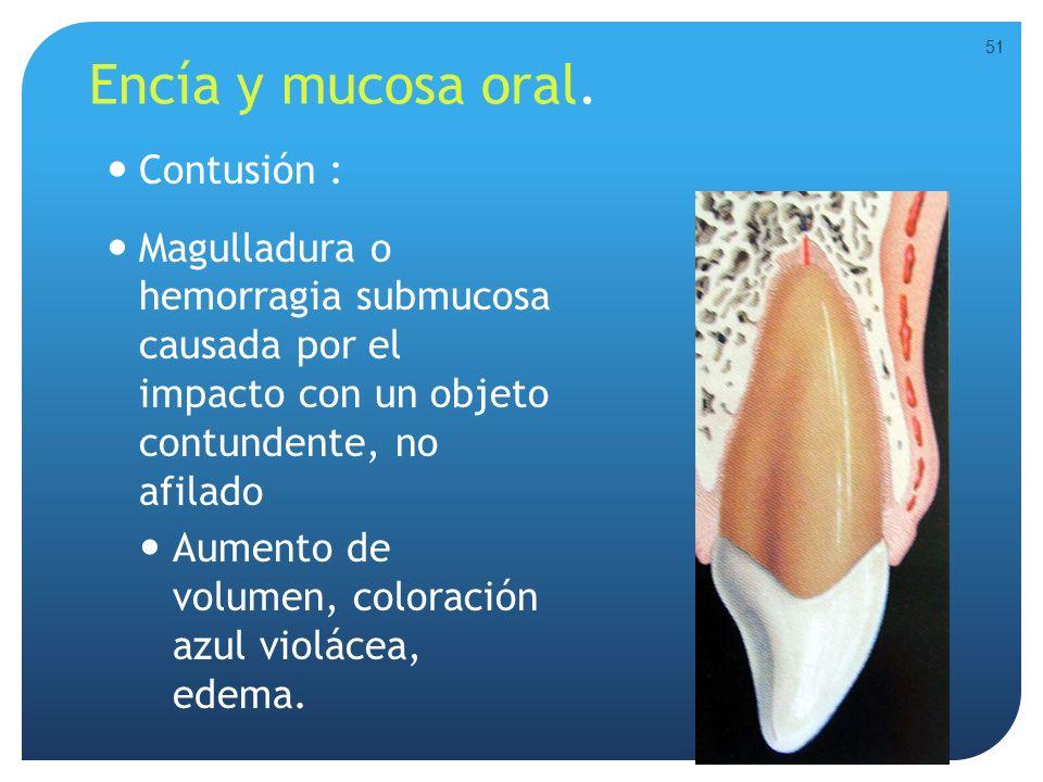 Encía y mucosa oral. Contusión : Magulladura o hemorragia submucosa causada por el impacto con un objeto contundente, no afilado Aumento de volumen, c