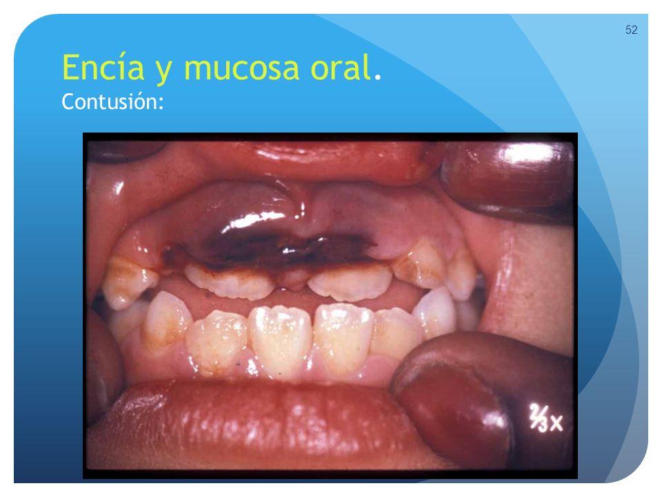 Encía y mucosa oral. Contusión: 52